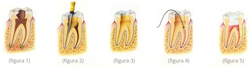 Realización Endodoncia